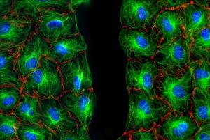 Mouse 3T3 fibroblasts